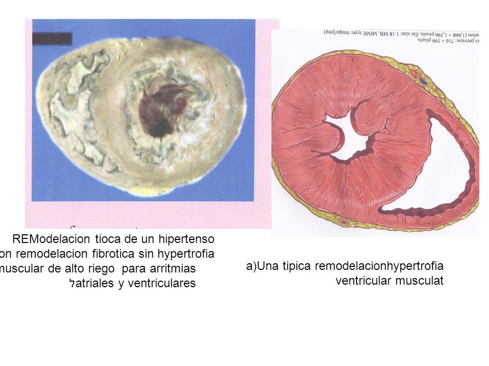 REModelacion tioca de un hipertenso Con remodelacion fibrotica sin hypertrofia muscular de alto riego para arritmias atriales y ventricularesל a)Una tipica remodelacionhypertrofia ventricular musculat