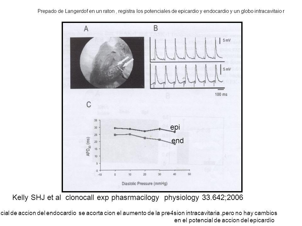 Kel Kelly SHJ et al clonocall exp phasrmacilogy physiology 33.642;2006 Prepado de Langerdof en un raton, registra los potenciales de epicardio y endocardio y un globo intracavitaio r Note que que el potencial de accion del endocardio se acorta cion el aumento de la pre4sion intracavitaria,pero no hay cambios en el potencial de accion del epicardio end epi