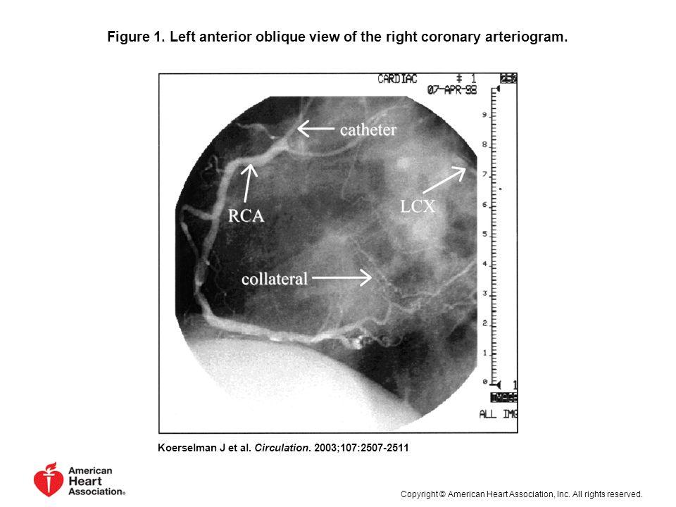 Figure 1. Left anterior oblique view of the right coronary arteriogram.