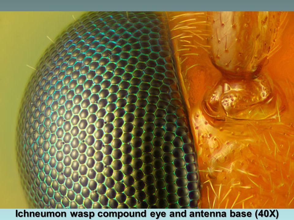 Hydropsyche angustipennis (caddisfly) larva head (30X)