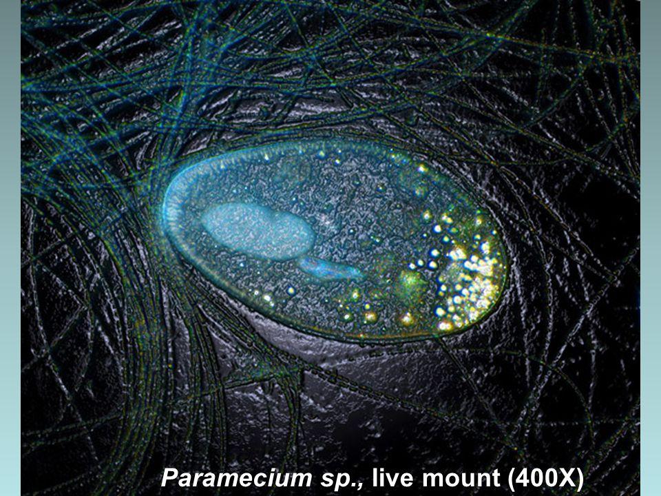 Paramecium sp. (100X)