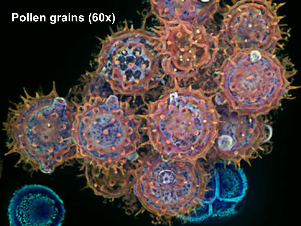 Paramecium sp., live mount (400X)