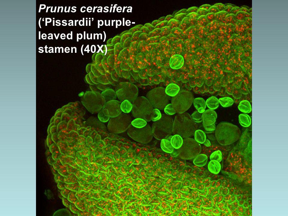 Protzia eximia (water mite), ventral view (10X)