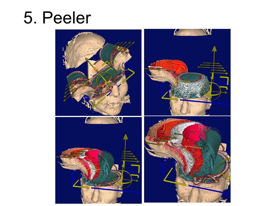 5. Peeler