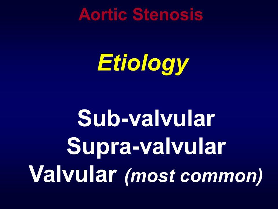 Etiology Sub-valvular Supra-valvular Valvular (most common) Aortic Stenosis