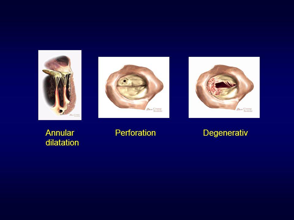 Annular dilatation PerforationDegenerativ