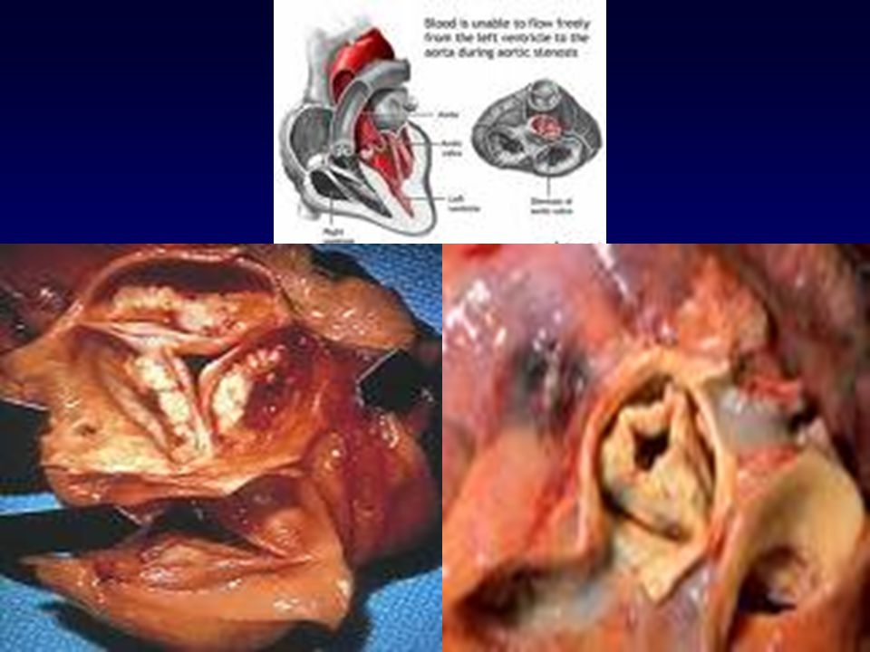 Treated Aortic Stenosis 40% survived for 5 years 20% survived for 10 years Sudden Cardiac Death Decreased cerebral blood flow Arrhythmias Natural History Aortic Stenosis Valvular