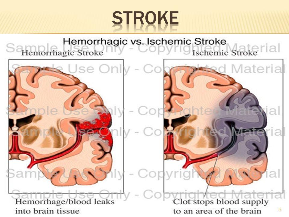 Hemorragic StrokeIschemic Stroke 6