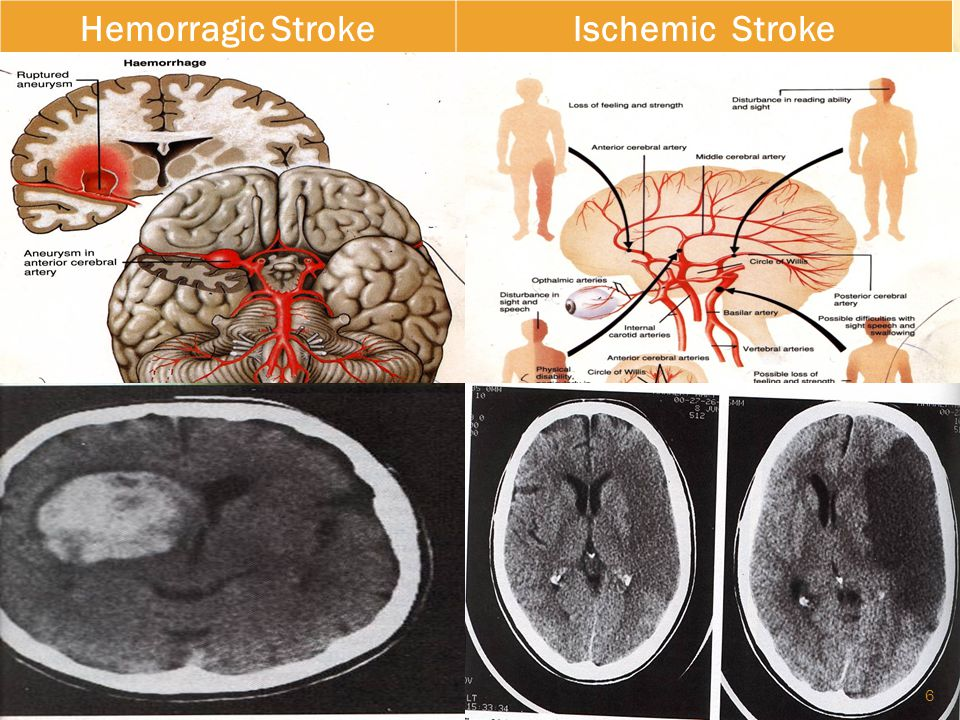 Left: Perfusion-weighted MRI of a patient who presented 1 hour after onset of stroke symptoms.