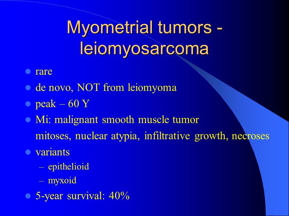 Myometrial tumors - leiomyosarcoma rare de novo, NOT from leiomyoma peak – 60 Y Mi: malignant smooth muscle tumor mitoses, nuclear atypia, infiltrativ