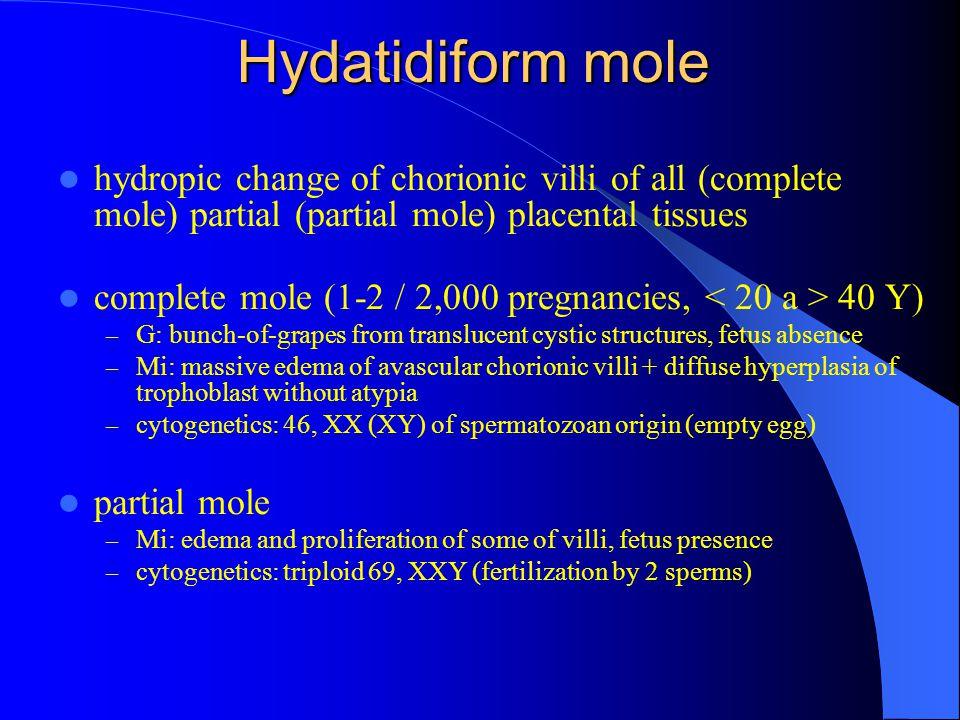 Hydatidiform mole hydropic change of chorionic villi of all (complete mole) partial (partial mole) placental tissues complete mole (1-2 / 2,000 pregna