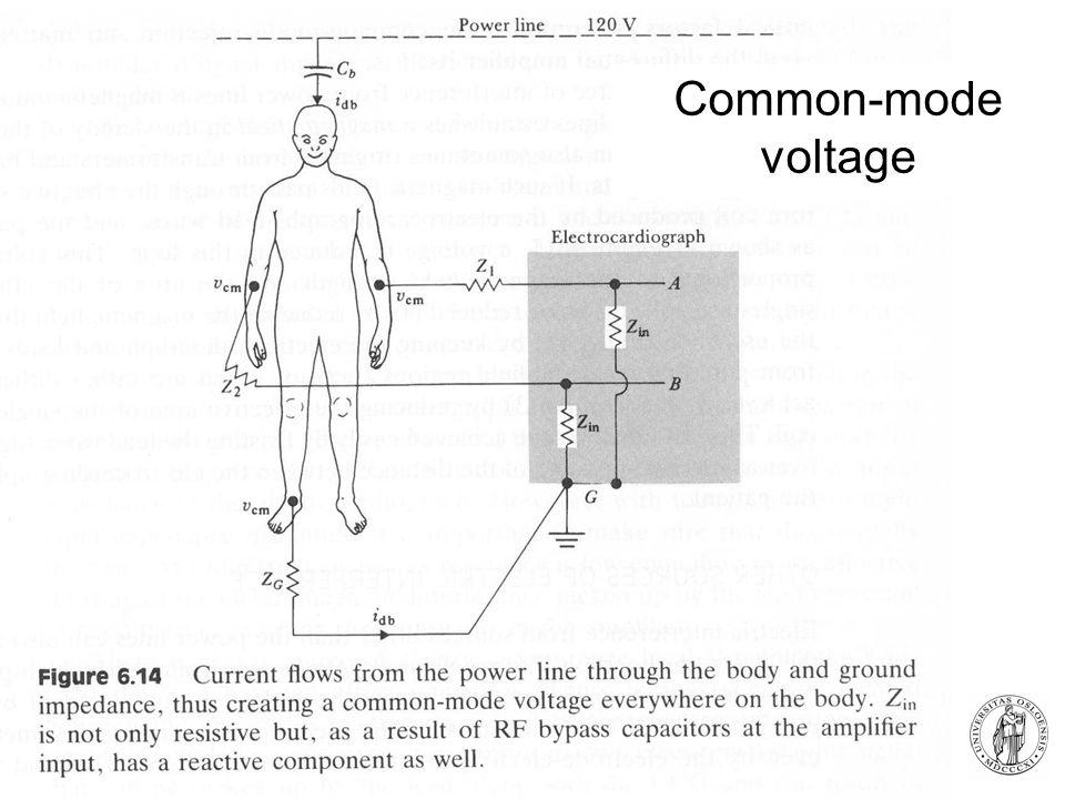 Fysisk institutt - Rikshospitalet 14 Common-mode voltage