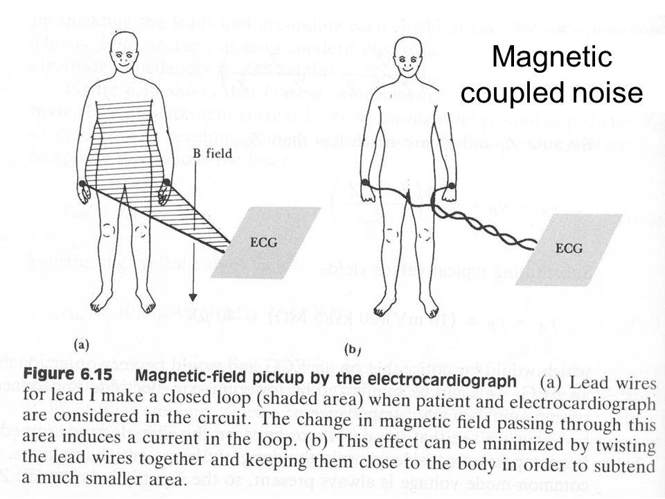 Fysisk institutt - Rikshospitalet 15 Magnetic coupled noise