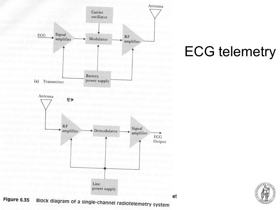Fysisk institutt - Rikshospitalet 28 ECG telemetry