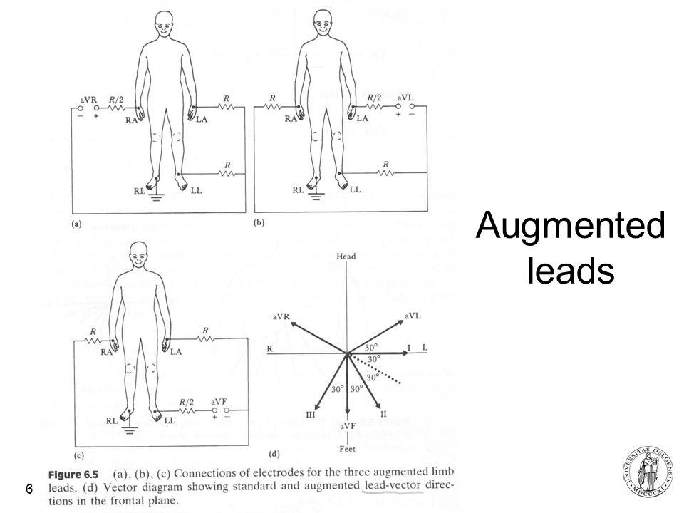 Fysisk institutt - Rikshospitalet 6 Augmented leads
