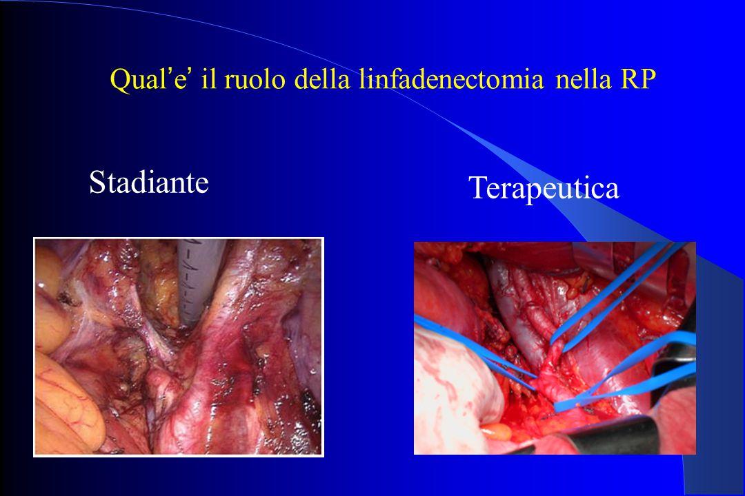 Qual ' e ' il ruolo della linfadenectomia nella RP Stadiante Terapeutica