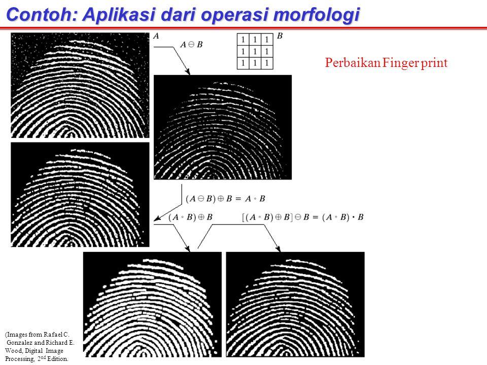 Contoh: Aplikasi dari operasi morfologi (Images from Rafael C. Gonzalez and Richard E. Wood, Digital Image Processing, 2 nd Edition. Perbaikan Finger