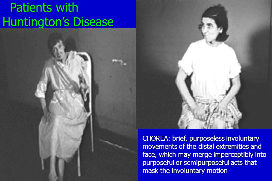 Patients with Patients with Huntington's Disease CHOREA: brief, purposeless involuntary movements of the distal extremities and face, which may merge imperceptibly into purposeful or semipurposeful acts that mask the involuntary motion