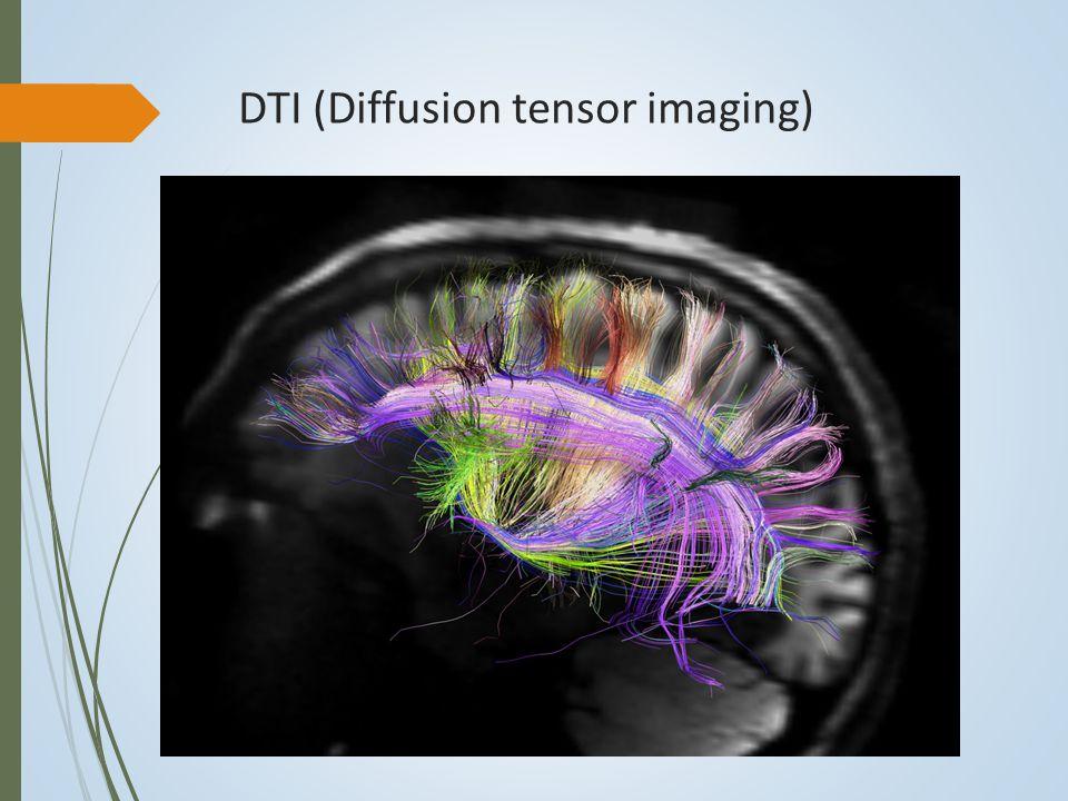 DTI (Diffusion tensor imaging)