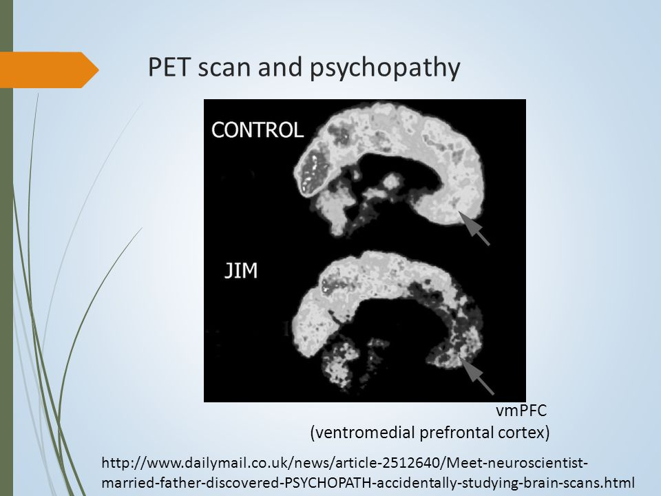 PET scan and psychopathy vmPFC (ventromedial prefrontal cortex) http://www.dailymail.co.uk/news/article-2512640/Meet-neuroscientist- married-father-discovered-PSYCHOPATH-accidentally-studying-brain-scans.html