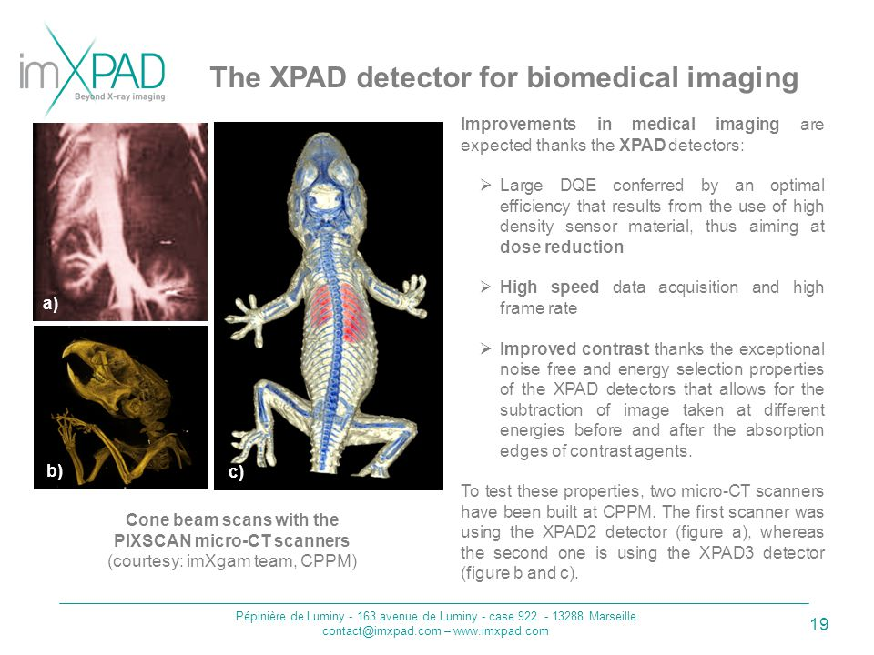 Pépinière de Luminy - 163 avenue de Luminy - case 922 - 13288 Marseille contact@imxpad.com – www.imxpad.com 19 The XPAD detector for biomedical imaging Cone beam scans with the PIXSCAN micro-CT scanners (courtesy: imXgam team, CPPM) Improvements in medical imaging are expected thanks the XPAD detectors:  Large DQE conferred by an optimal efficiency that results from the use of high density sensor material, thus aiming at dose reduction  High speed data acquisition and high frame rate  Improved contrast thanks the exceptional noise free and energy selection properties of the XPAD detectors that allows for the subtraction of image taken at different energies before and after the absorption edges of contrast agents.