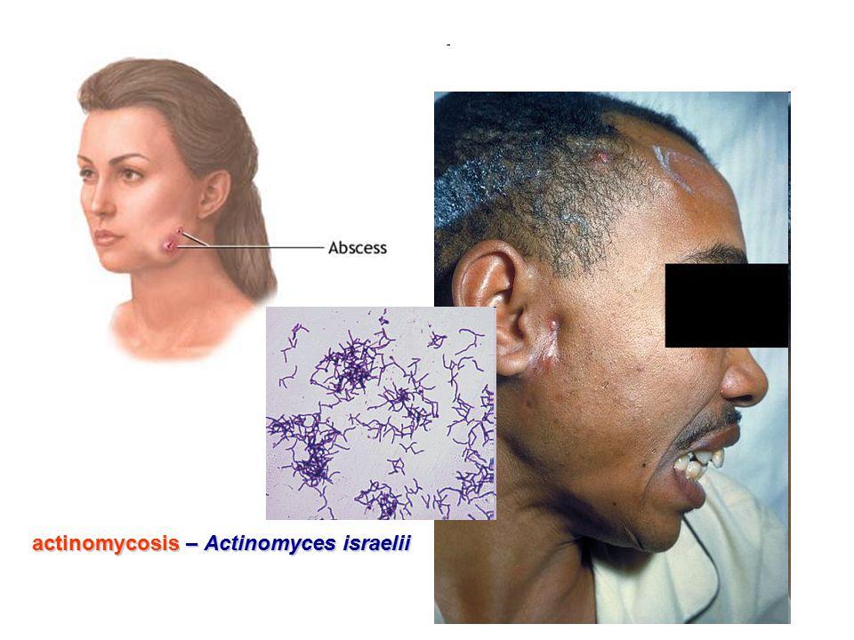 actinomycosis – Actinomyces israelii