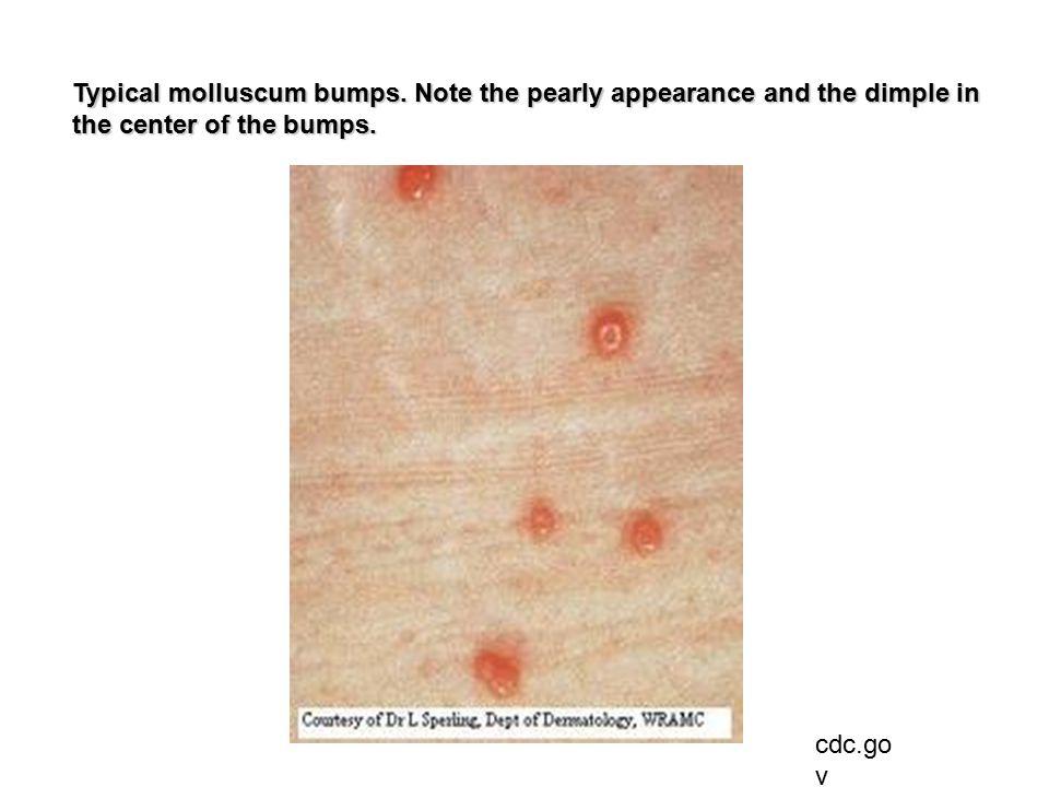 cdc.go v Typical molluscum bumps.