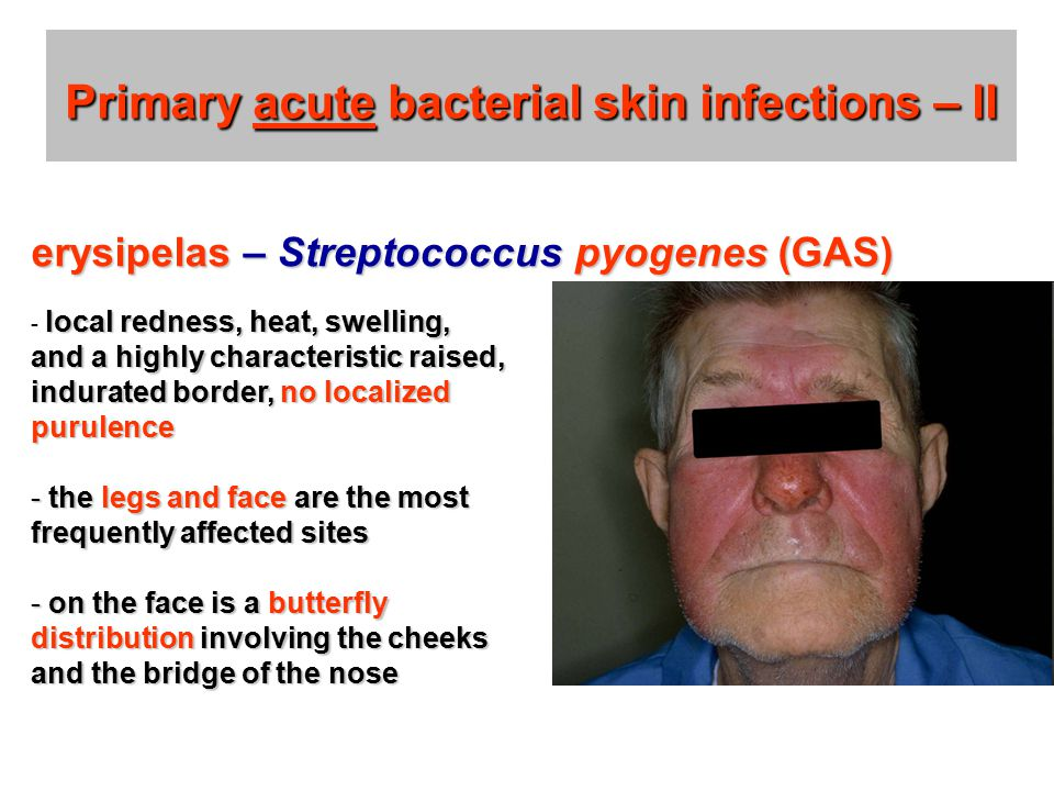 Primary acute bacterial skin infections – II local redness, heat, swelling, and a highly characteristic raised, indurated border, no localized purulence - local redness, heat, swelling, and a highly characteristic raised, indurated border, no localized purulence - the legs and face are the most frequently affected sites - on the face is a butterfly distribution involving the cheeks and the bridge of the nose erysipelas – Streptococcus pyogenes (GAS)