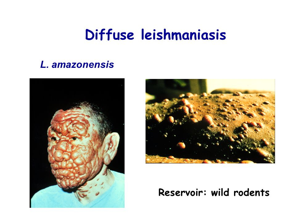 Diffuse leishmaniasis Reservoir: wild rodents L. amazonensis