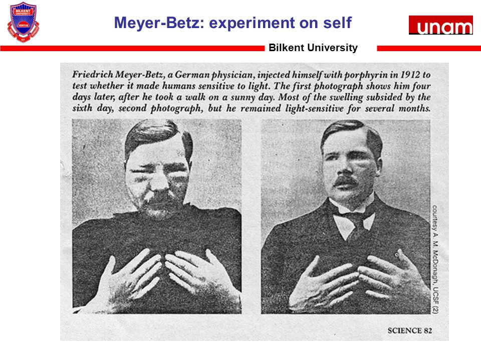 Meyer-Betz: experiment on self