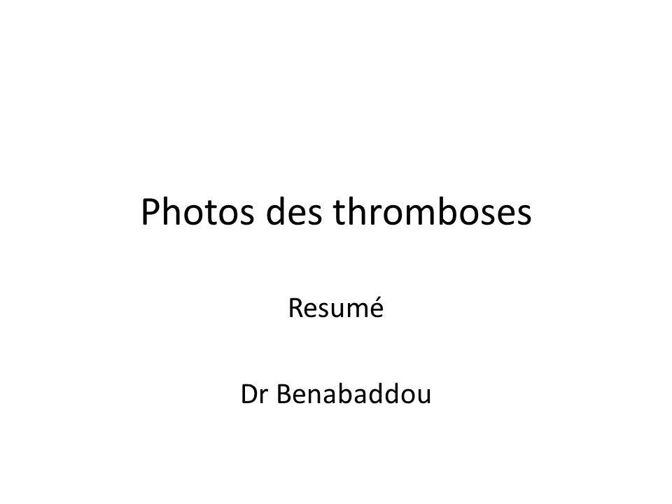 Photos des thromboses Resumé Dr Benabaddou