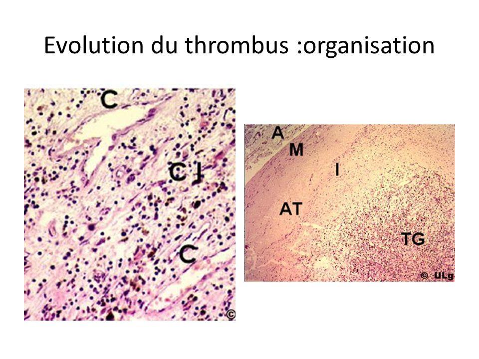 Evolution du thrombus :organisation