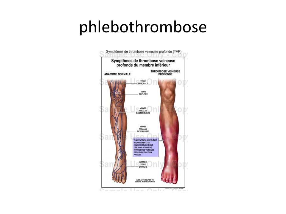 phlebothrombose