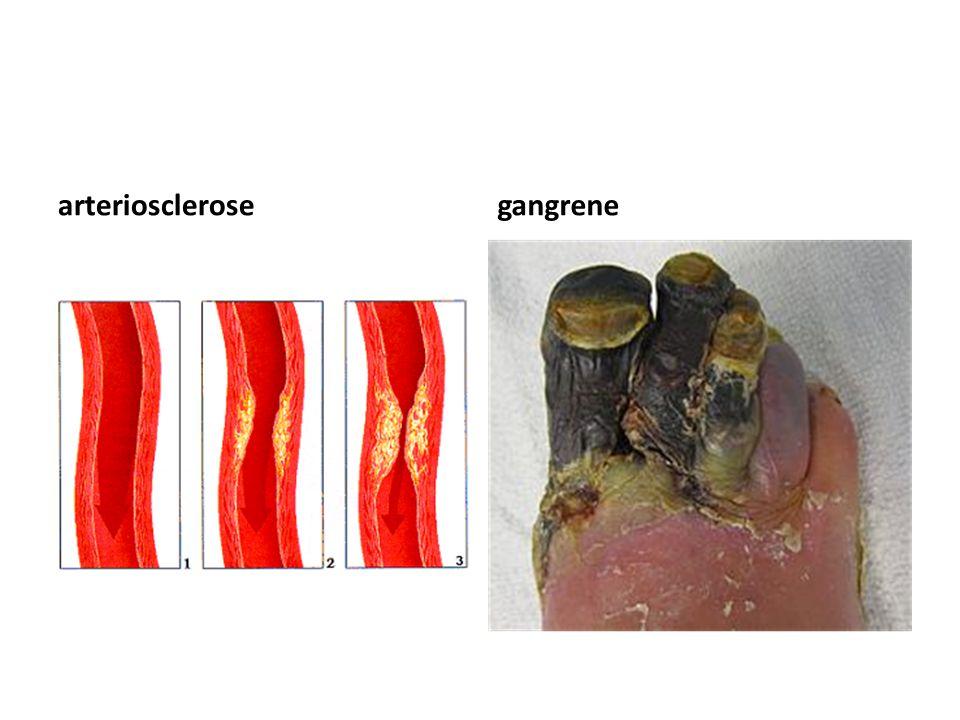 arteriosclerosegangrene