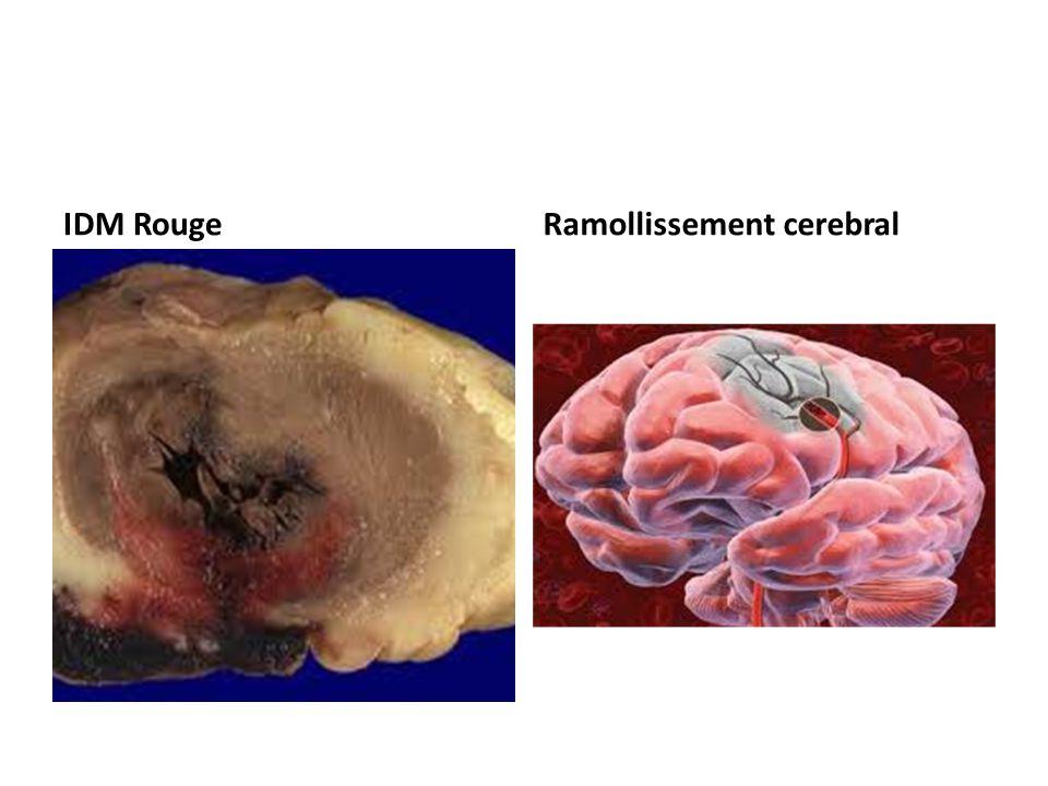 IDM RougeRamollissement cerebral