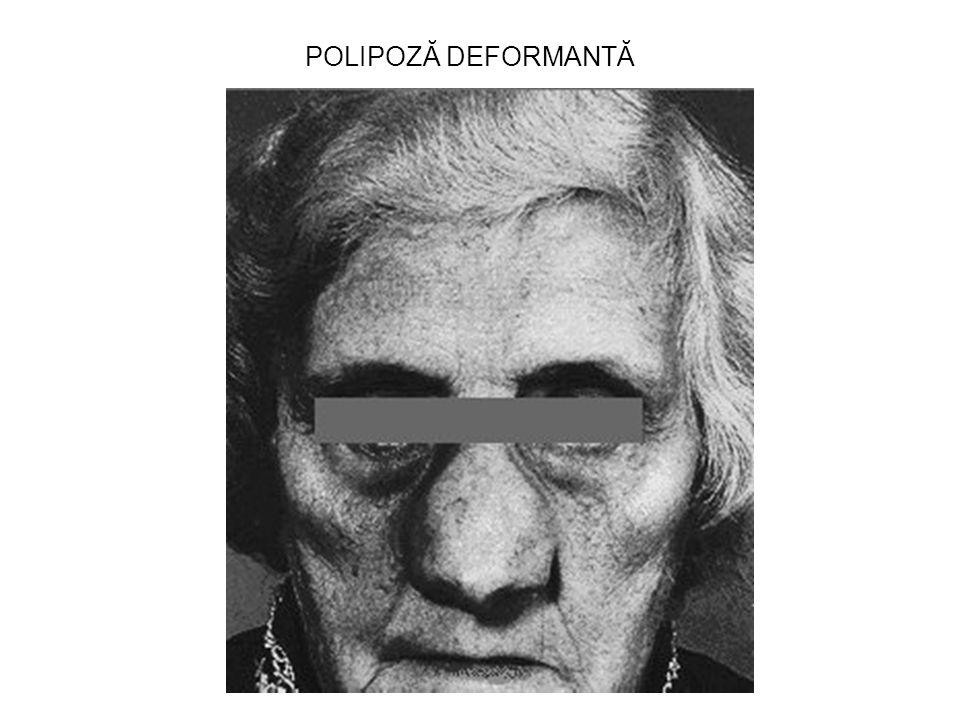 POLIPOZĂ DEFORMANTĂ