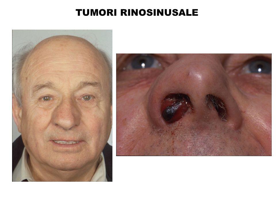 TUMORI RINOSINUSALE
