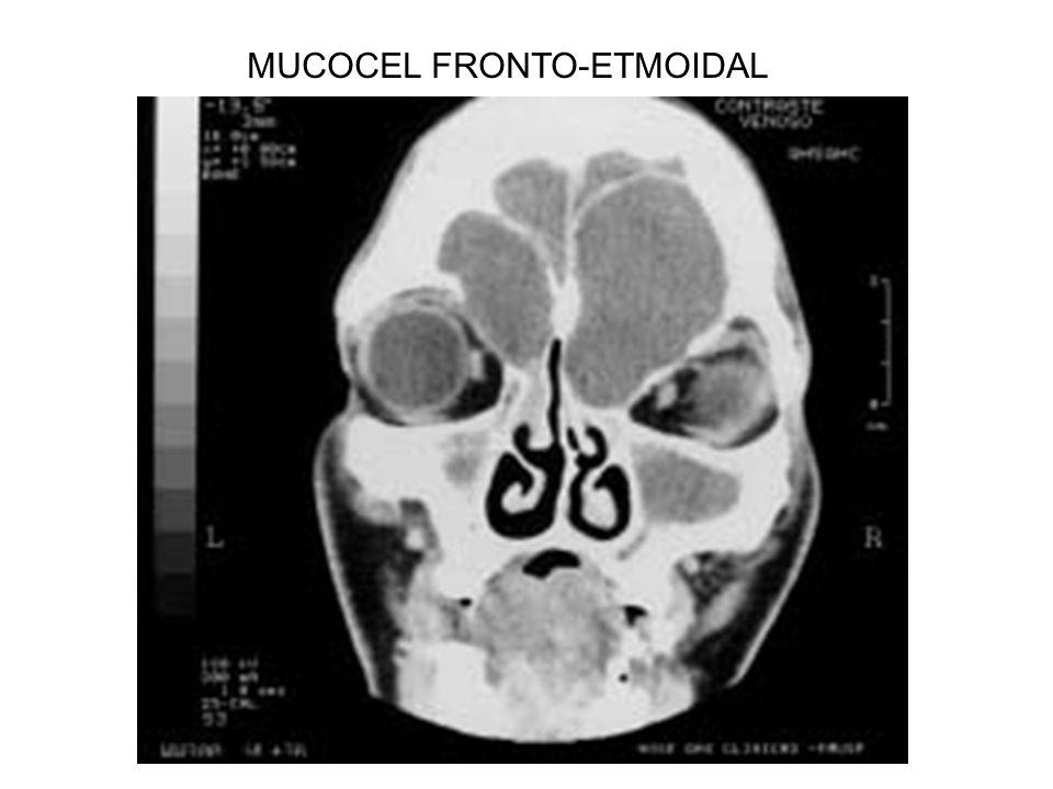 MUCOCEL FRONTO-ETMOIDAL