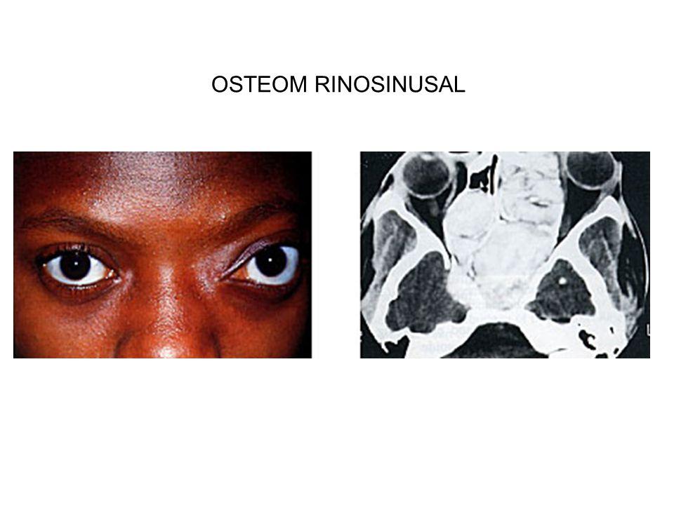 OSTEOM RINOSINUSAL