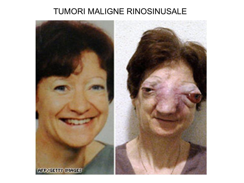 TUMORI MALIGNE RINOSINUSALE