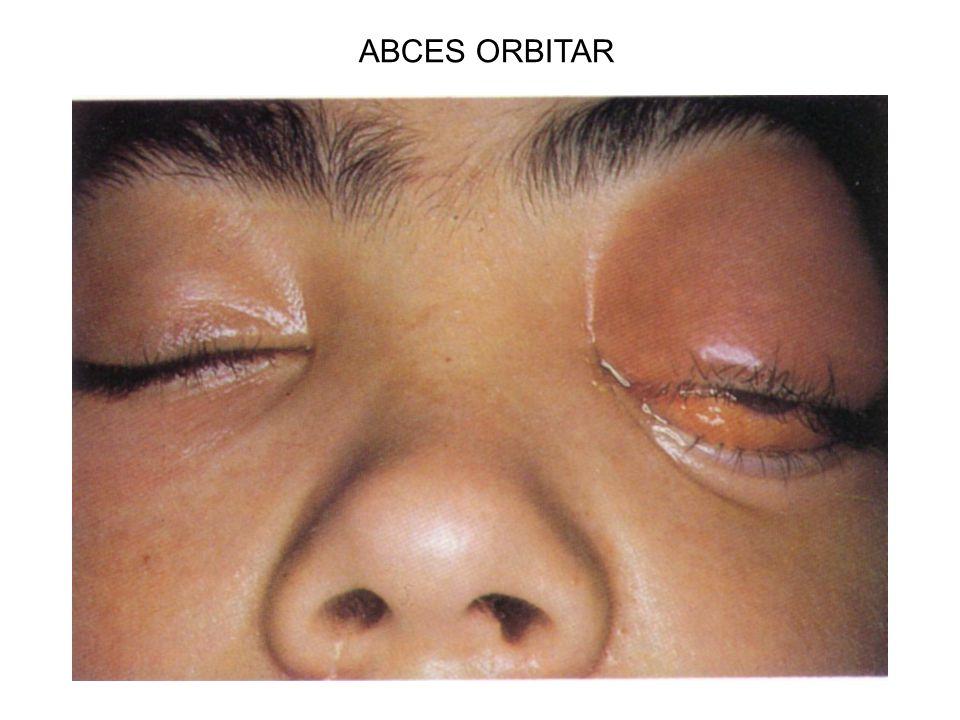 ABCES ORBITAR