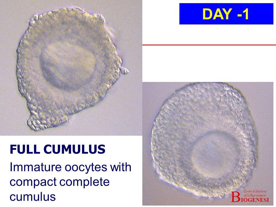 IOGENESI Centro di Medicina della Riproduzione B FULL CUMULUS Immature oocytes with compact complete cumulus DAY -1 IOGENESI Centro di Medicina della Riproduzione B