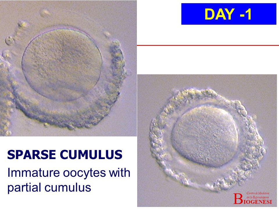 IOGENESI Centro di Medicina della Riproduzione B SPARSE CUMULUS Immature oocytes with partial cumulus DAY -1 IOGENESI Centro di Medicina della Riproduzione B