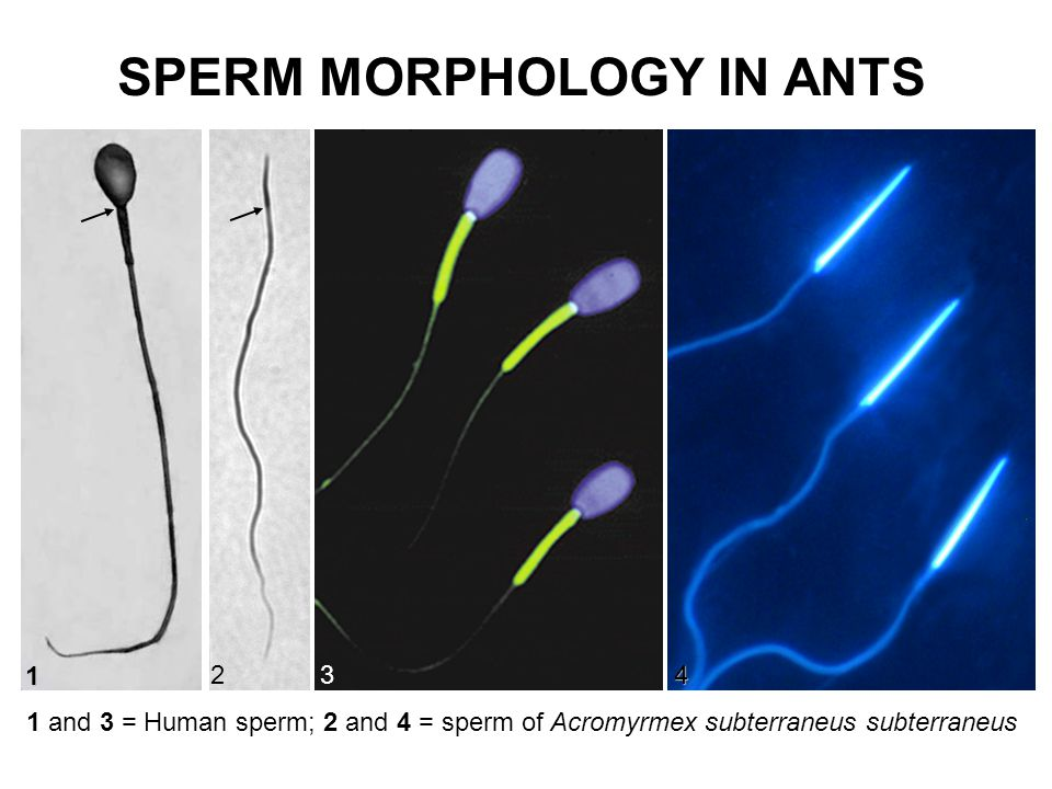 n a n 2341 SPERM HUMUN AND INSECT: HEAD REGION 1 = human sperm; 2-4 = ant sperm.