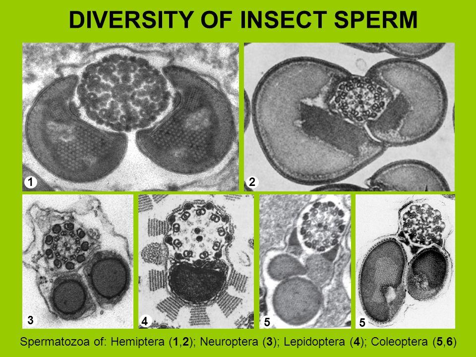 DIVERSITY OF INSECT SPERM 12 3 4 5 5 Spermatozoa of: Hemiptera (1,2); Neuroptera (3); Lepidoptera (4); Coleoptera (5,6)
