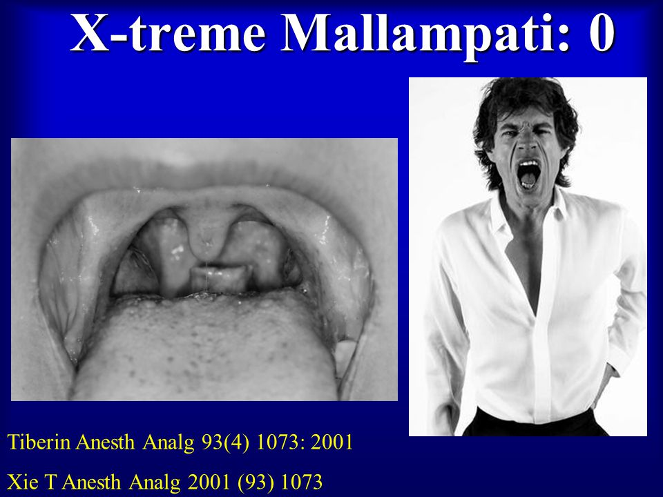 X-treme Mallampati: 0 Tiberin Anesth Analg 93(4) 1073: 2001 Xie T Anesth Analg 2001 (93) 1073