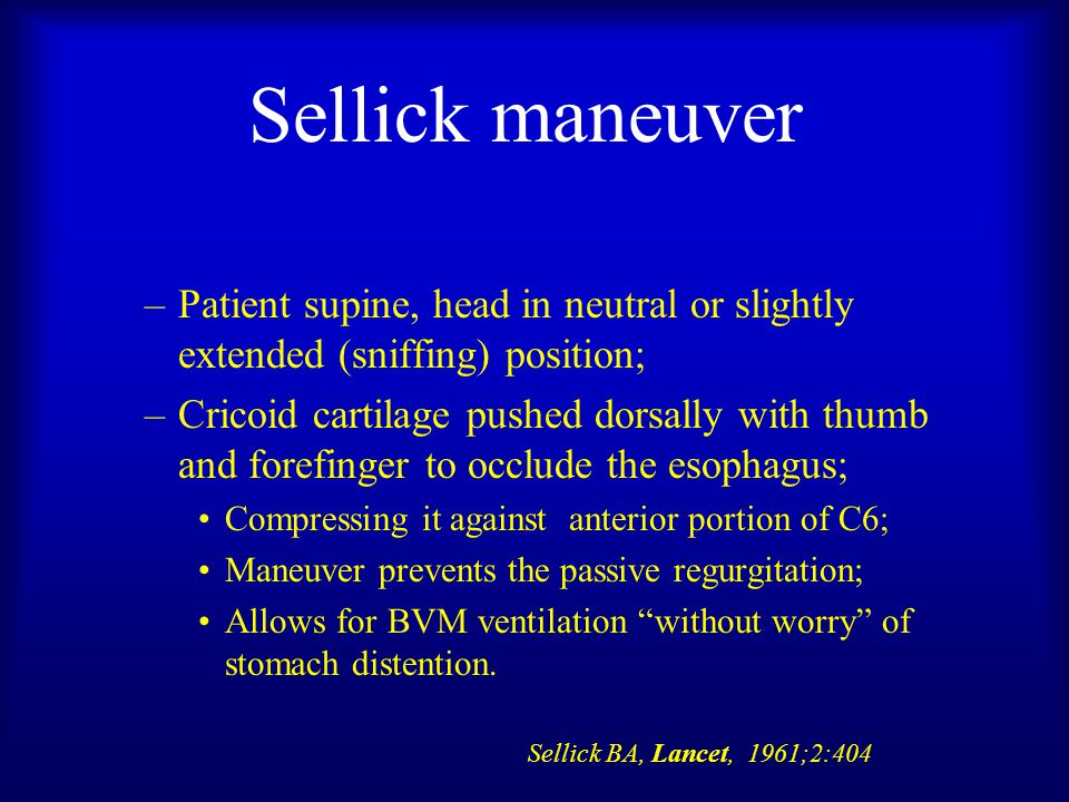 Sellick maneuver –Patient supine, head in neutral or slightly extended (sniffing) position; –Cricoid cartilage pushed dorsally with thumb and forefinger to occlude the esophagus; Compressing it against anterior portion of C6; Maneuver prevents the passive regurgitation; Allows for BVM ventilation without worry of stomach distention.
