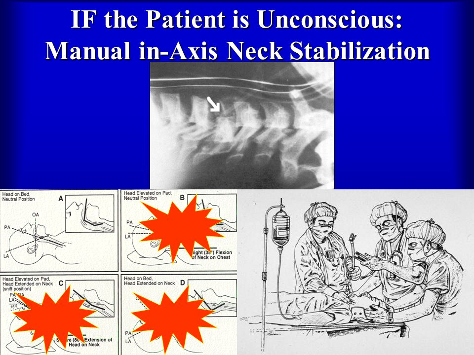 IF the Patient is Unconscious: Manual in-Axis Neck Stabilization