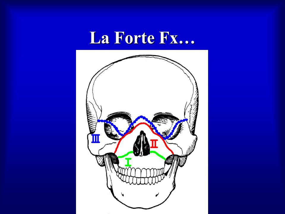 La Forte Fx…