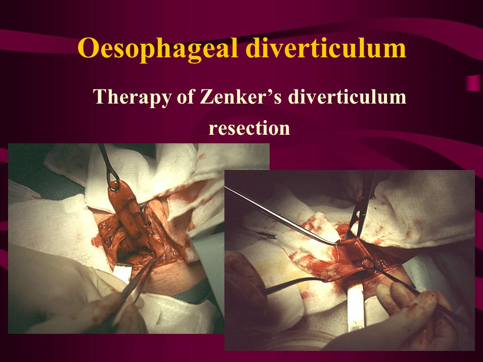 Oesophageal diverticulum Therapy of Zenker's diverticulum resection